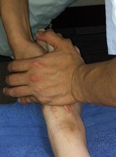 足(リスフラン関節)のAKA治療